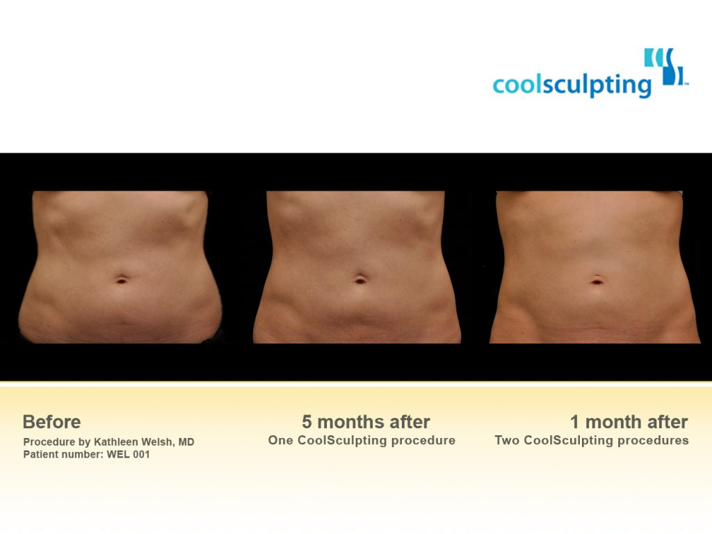 CoolSculpting Fat Reduction St Louis St Peters MO