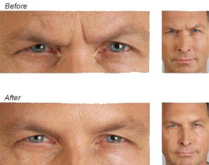 BOTOX Cosmetic in St Louis St Peters MO