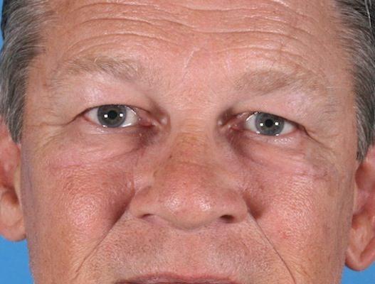 Missouri facial resurfacing requirements